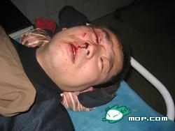 Wang's son was seriously wounded and left lying in the hospital without treatment. (Photo provided by interviewee)