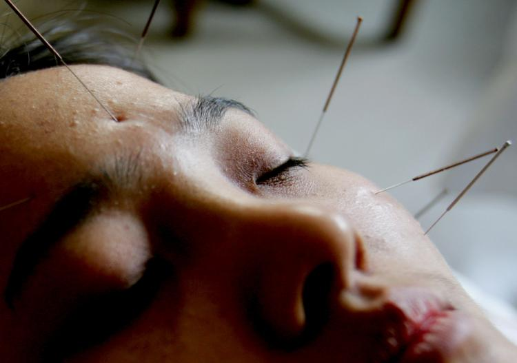 Acupuncture is an important part of Chinese medicine. (China Photos/Getty Images)