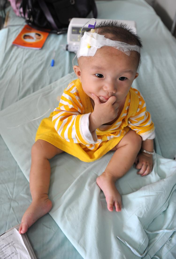 A baby who suffers from kidney stones after drinking tainted milk powder, gets IV treatment at the Chengdu Children's Hospital on September 22, 2008 in Chengdu of Sichuan Province, China. (China Photos/Getty Images)