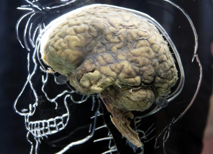 BRAIN: A human brain in the Real Brain Exhibit in Bristol, England. (Matt Cardy/Getty Images)