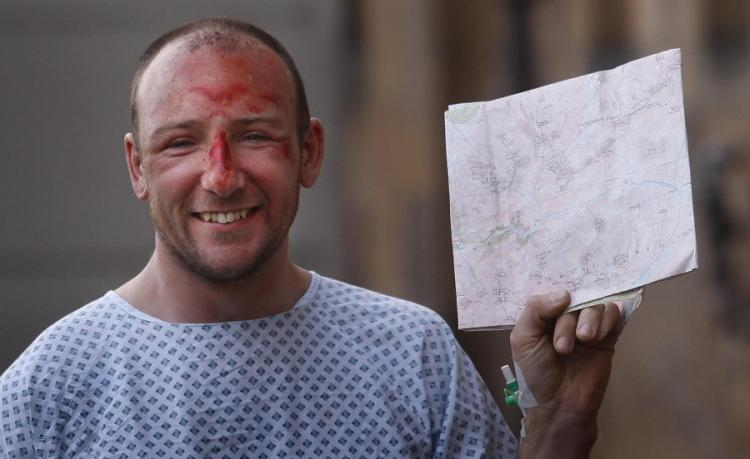 GLASGOW, UNITED KINGDOM - JANUARY 30: Adam Potter, 36, from Glasgow, who fell almost 1,000ft (305m) from the summit of Britain's highest mountain, poses while recovering at the Southern General hospital on January 30, 2011 in Glasgow, Scotland. (Getty Unedited)