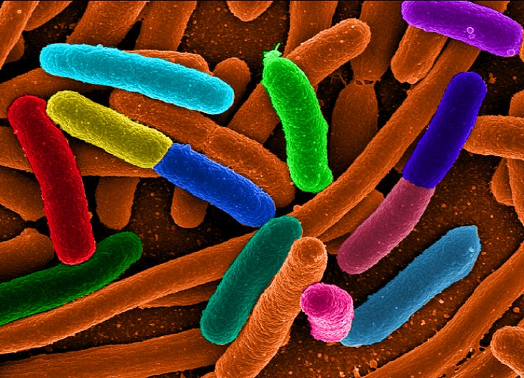 Dubbed Steganography by Printed Arrays of Microbes (SPAM), the technique first required developing seven strains of E. coli bacteria that grow in different colors when exposed to ultraviolet light. (Mattosaurus/Wikimedia Commons)