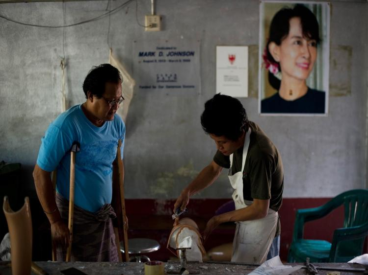 IMPACT: A Burmese landmine victim watches as a worker prepares an artificial limb at the Mae Tao clinic in Northwest Thailand. (Nicolas Asfouri/AFP/Getty Images)
