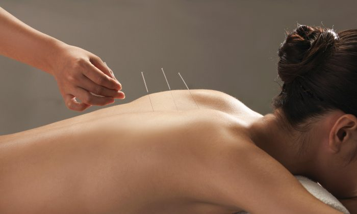 Acupuncture was found effective for reducing pain associated with osteoarthritis, chronic headache, shoulder pain, nonspecific musculoskeletal pain, neck pain and back pain. (Courtesy of Integrative Healing Arts Acupuncture)