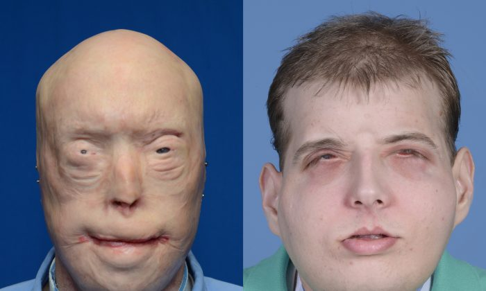 This combination of photos provided by the New York University Langone Medical Center shows Patrick Hardison before and after his facial transplant surgery in New York. (Mary Spano/Eduardo D. Rodriguez/Wyss Department of Plastic Surgery/NYU Langone Medical Center via AP)