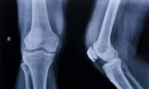 Study: Knee Surgery No Better Than Placebo