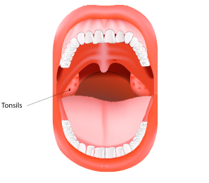 The tonsils are an important part of the immune system. (ttsz/iStock)