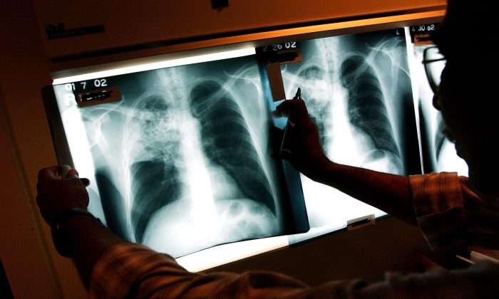 A doctor examines the x-rays of a tuberculosis (TB) patient at a TB clinic in Brooklyn, New York, on Nov. 27, 2002. (Spencer Platt/Getty Images)