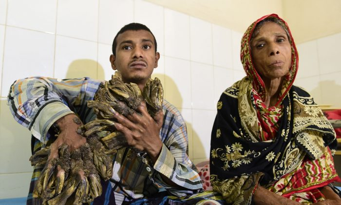 "Abul Bajandar (L), 26, dubbed ""Tree Man"" for massive bark-like warts on his hands and feet, sits at Dhaka Medical College Hospital in Dhaka, on Jan. 31, 2016. (Munir uz Zaman/AFP/Getty Images)"