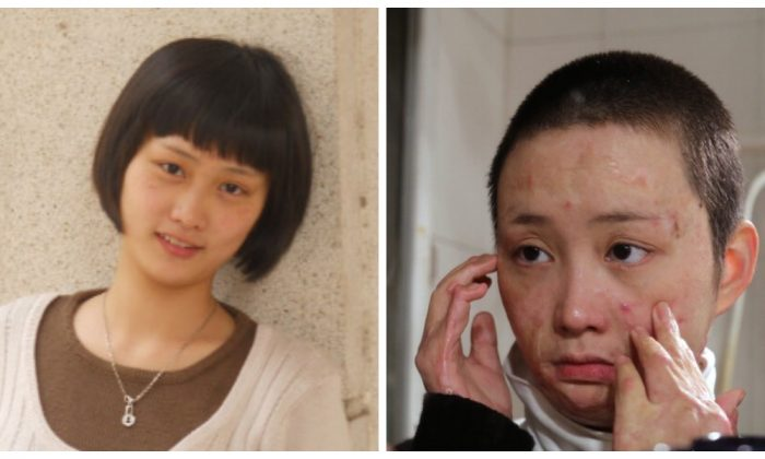 Zhou Yan before and after her attack. (Sina Weibo)