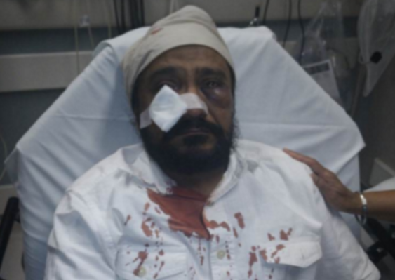 Inderjit Singh Mukker, 53, in the hospital after being attacked. (The Sikh Coalition)