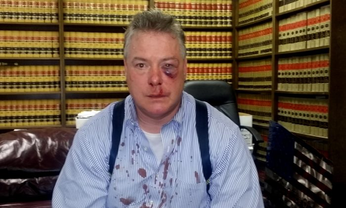 This March 9, 2016 photo provided by Jerry L. Steering shows Defense attorney James Crawford at his attorney's office in Newport Beach, Calif. Crawford an Orange County defense attorney who suffered a bloodied face after a brawl with a district attorney's investigator in a Santa Ana, courthouse hallway. Crawford was speaking with a witness in the courthouse Wednesday, March 9, when an investigator he did not know interrupted his conversation and called defense lawyers sleazy, said Jerry Steering, Crawford's lawyer. (Jerry L. Steering via AP)