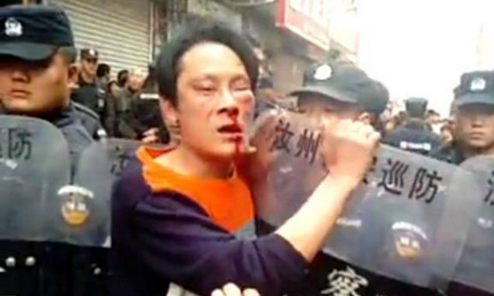 A man injured in the conflict. (Sina Weibo)