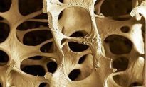 Diet and Management Tips for Osteoporosis