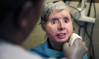 Charla Nash: Chimp Attack Victim in Hospital After Body Starts Rejecting Face Transplant