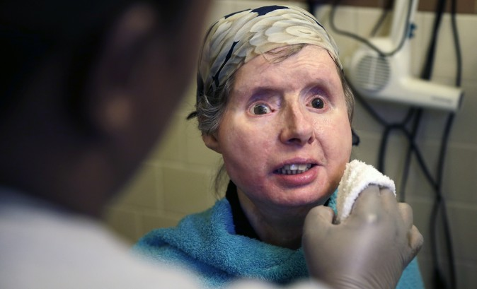 In this Feb. 20, 2015 file photo, Charla Nash smiles as her care worker washes her face at her apartment in Boston. Nash says doctors have decided to end an experimental drug treatment and put her back on her original medication in the hopes of reversing the rejection.  (AP Photo/Charles Krupa)