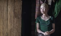 Surge in Albinos Targeted and Killed in Malawi for Rituals: Amnesty