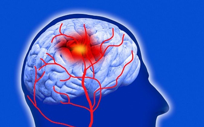 Human brain showing stroke (computer artwork/Getty Images)