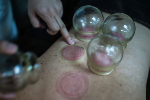 "A patient receives cupping treatment at a Chinese medicine clinic in Hong Kong on Aug. 10, 2016. The Chinese treatment, also known as ""ba guan,"" utilizes heated glass cups to create a suction on the patient's skin, causing a circular mark that looks like bruising on the skin. (Lam Yik Fei/Getty Images)"