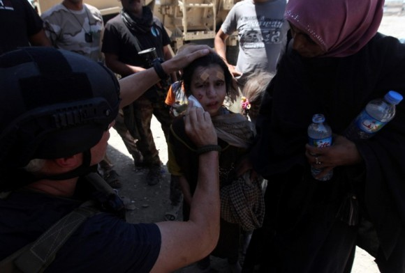 A wounded displaced Iraqi girl who fled from clashes is seen in the Old City of Mosul, Iraq June 24, 2017.  (Reuters/Azad Lashkari)