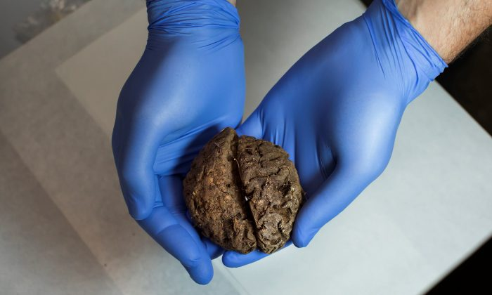 One of the 45 brains saponified of those killed by forces of the dictator Francisco Franco, found in 2010 in a mass grave around the area known as La Pedraja, is shown at a laboratory in Verin, Spain, June 9, 2017. (Reuters/Juan Medina)