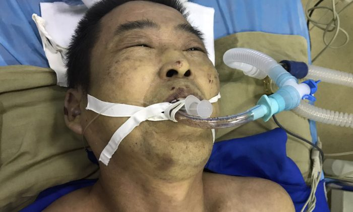 Falun Gong practitioner Yang Yuyong passed away on July 12 after eight months of being detained for his spiritual beliefs. His body was covered with wounds and bruises. (Radio Free Asia)