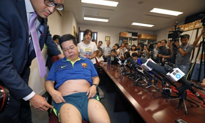 Democratic Party member Howard Lamshows off his injury at a news conference in Hong Kong, China August 11, 2017. (Apple Daily via REUTERS)