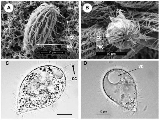 Scanning electron microscope showing the ciliate protozoan M. avidus (Medina et al., 2016 [http://revistasinvestigacion.unmsm.edu.pe/index.php/rpb/article/view/12861/11482])