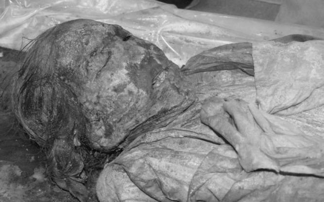 A female Korean mummy (ncbi.nlm.nih.gov)