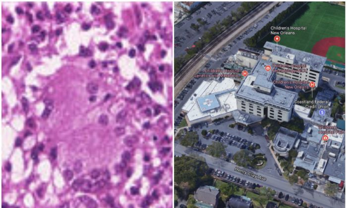 L: Mycobacterium abscessus. (CDC); R: Children's Hospital of New Orleans. (Screenshot via Google Maps)