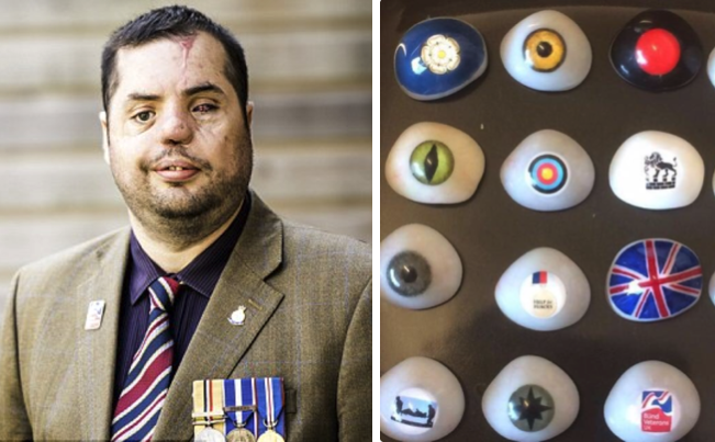 Simon Brown is appealing for help in finding his precious collection of glass eyes. (Photos courtesy of Blind Veterans UK)