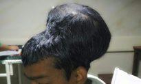 Indian Surgeons Remove 'Heaviest Recorded' Brain Tumor