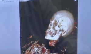 Scientists Scan This 4000-Year-Old Mummy—They are Shocked To Discover How He Died