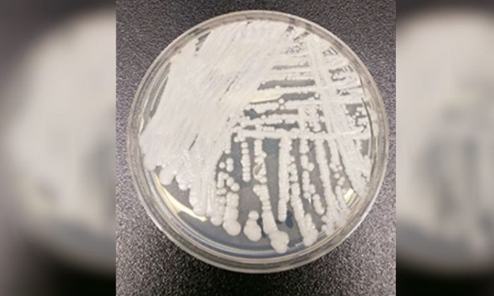 A strain of Candida auris cultured in a petri dish at a CDC laboratory. (Shawn Lockhart/Centers for Disease Control)
