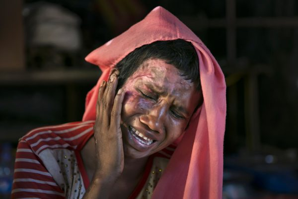 A Rohingya woman recounts the horror of being raped and set on fire by Burmese soldiers