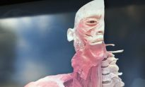 Experts Urge Government to Investigate Controversial Dead Bodies Exhibition