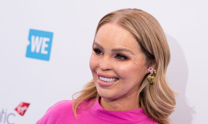 Katie Piper, who was scarred in an acid attack, attends an event at Wembley Arena in London, on March 7, 2018. (Jeff Spicer/Getty Images)