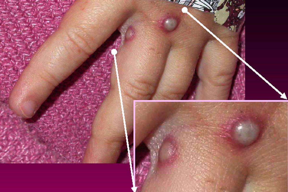 A monkeypox rash shown on a hand