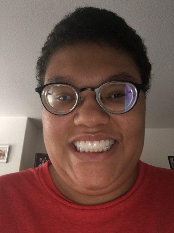 Yeadons new smile