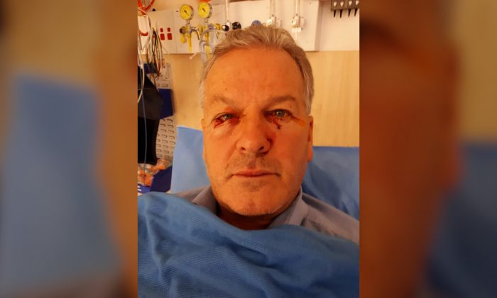 Billy Willox in hospital after being attacked by a kangaroo he was checked up on in Googong, ACT, in Sept. 2018. (Kerrie Venables/Facebook)