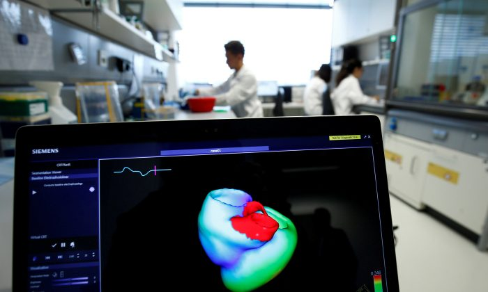 A monitor shows a three-dimensional image of a human heart at the Klaus-Tschira-Institute for Integrative Computational Cardiology, department of the Heidelberg University Hospital in Heidelberg, Germany, on Aug. 14, 2018. (Ralph Orlowski/Reuters)