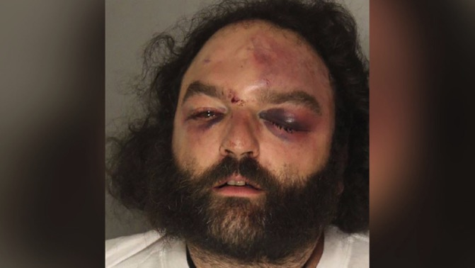 Frank Deluca was reportedly injured in a bar brawl involving undercover police officers and members of the Pagan motorcycle club, according to multiple reports, on Oct. 12, 2018. (Allegheny County Jail)