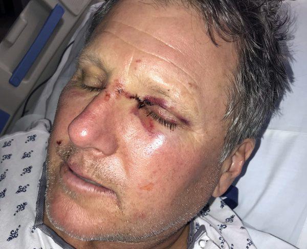 Bob Legasa in hospital