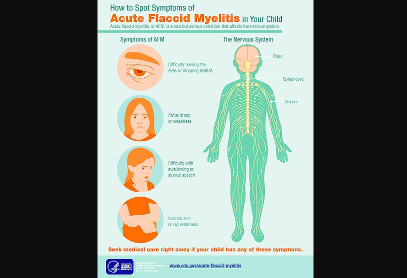 Acute Flaccid Myelitis symptoms infographic by CDC