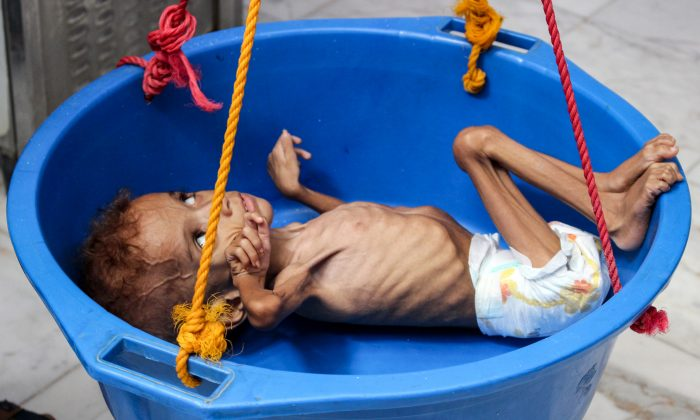 A two-year-old Yemeni boy suffering from malnutrition has his weight measured at a hospital in the northern district of Abs in the northwestern Hajjah province on Sept. 19, 2018. (ESSA AHMED/AFP/Getty Images)