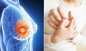 Breast Cancer Drug for Reducing Recurrence Risk Approved for Australia
