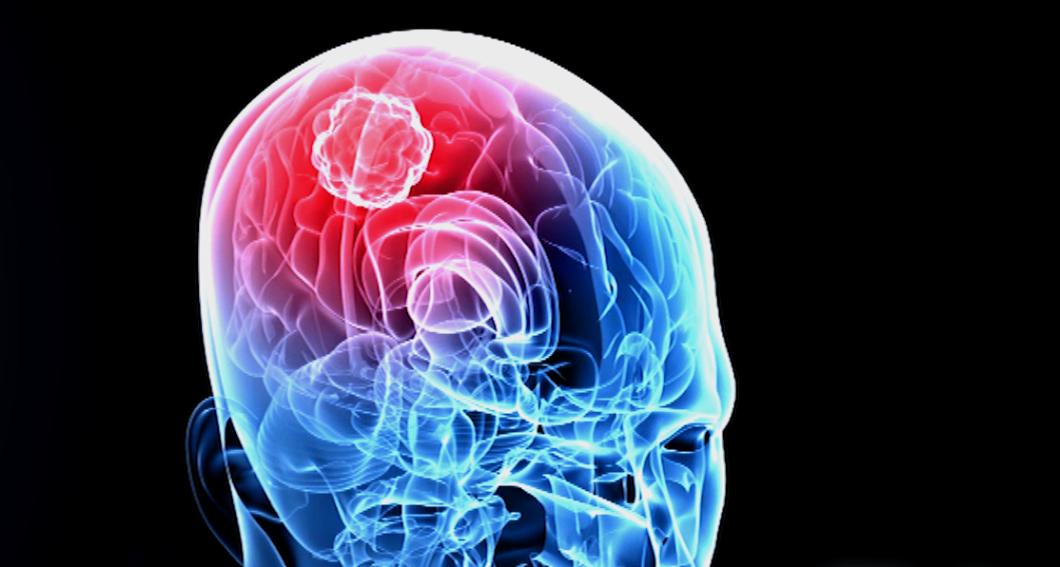 brain with tumor