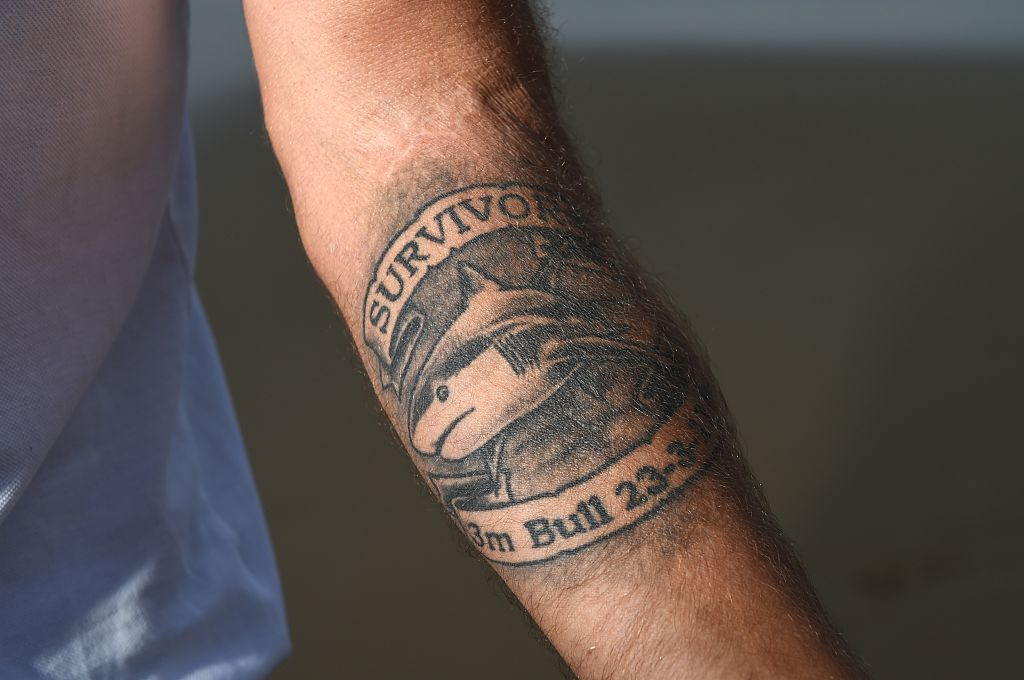 Arm of Shark Attack Survivor Dave Pearson