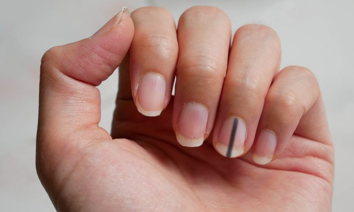 Stripe Under Fingernails Could Be Sign of Cancer, Doctor Warns