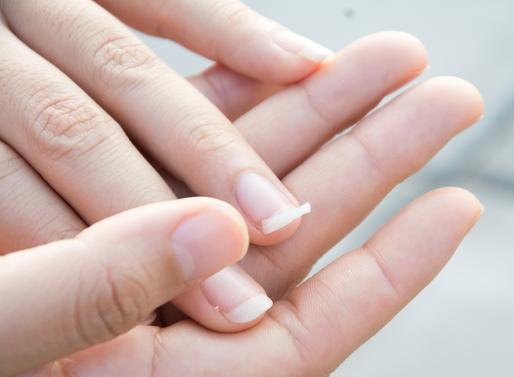 Woman's Warning Goes Viral After Finding out Curved Fingernails Are a Sign of Lung Cancer